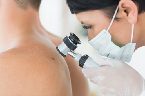 Closeup of dermatologist examining mole on back of male patient